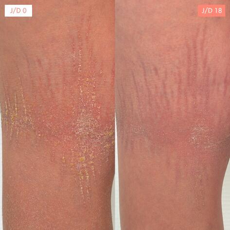 av_treatment-result-ictyosis-d0d18