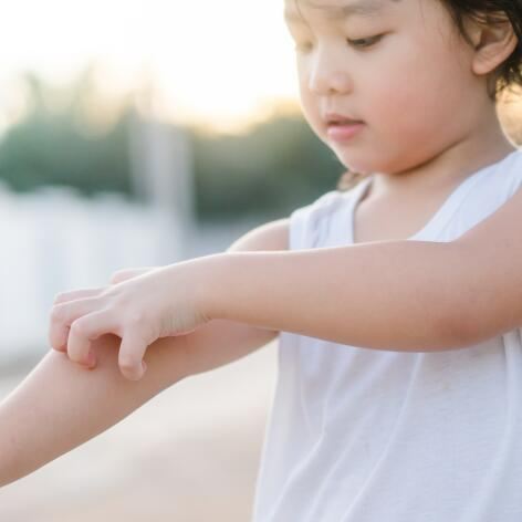 AD_ATOPIE_LITTLE-GIRL-SCRATCHING-ARM_LARGE_2021