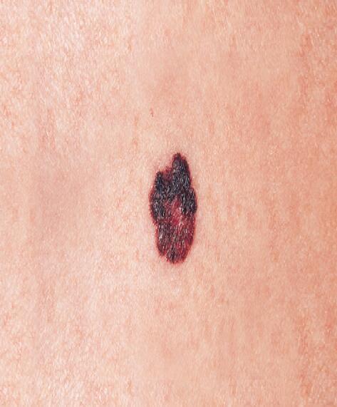 av_solaires_cancer-peau_melanome_16x9