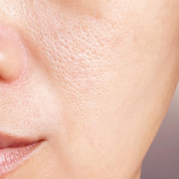 av_acne_pores-peau_1x1