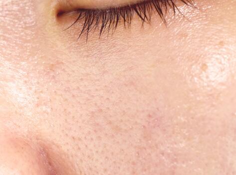 av_acne_peau-luisante_1x1