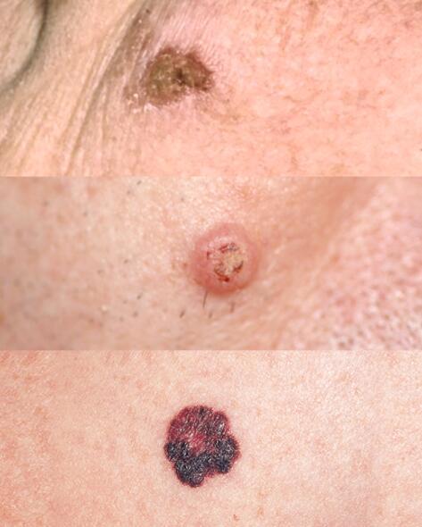 av_solaires_cancer-peau_3-types_1x1