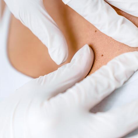 av_peau-cancer_dermatologue_examen_peau_boutons_1x1