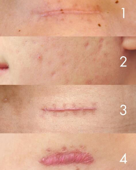av_votre-peau_cicatrisation_types-cicatrices_4x5