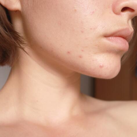 av_acne_bas-du-visage_1x1-1