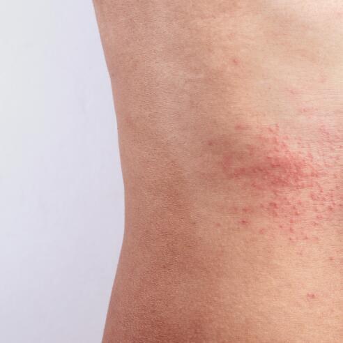 av_eczema-psoriasis_abdomen_1x1