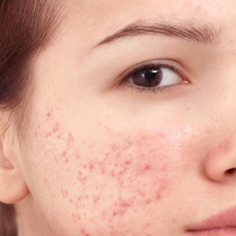 av_acne_adolescent_severe_1x1