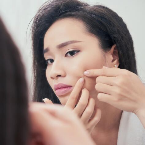 av_votre-peau_cicatrisation_acne_asiatique_jeune-femme_1x1