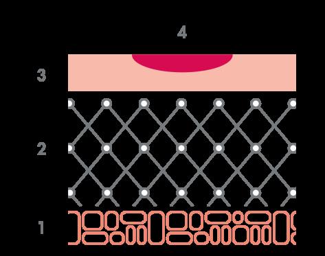 av_solaires_schema_brulure_degre-1_1x1