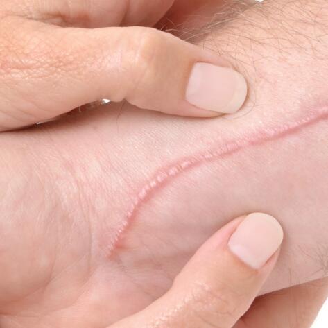 av_votre-peau_cicatrisation_massage_1x1