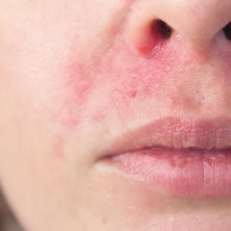 av_votre-peau_cicatrisation_irritations_allergies_visage_4x5_2
