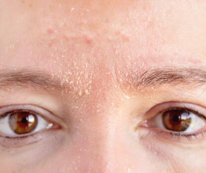 av_carnets-experts_acne_xerose-induite_5x4