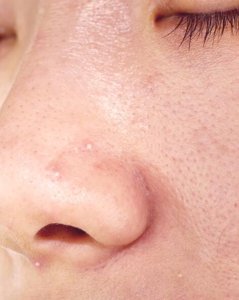 av_carnets-experts_acne_hyperseborrhee_4x5