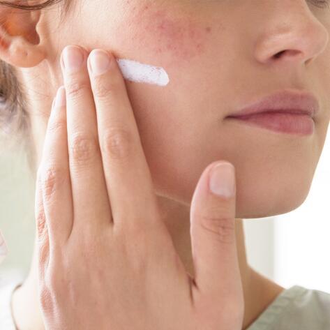 av_votre-peau_cicatrisation_irritations-cutanees_conseils_traitement_1x1
