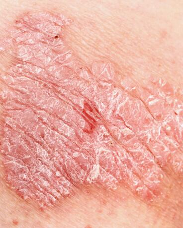 av_eczema-psoriasis_psoriasis_close-up_1x1