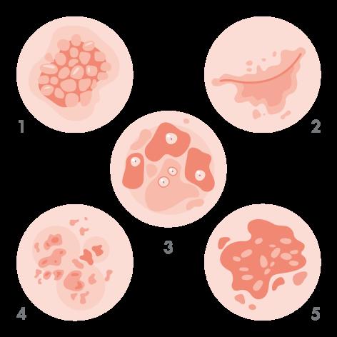 av_eczema-psoriasis_schema_types-de-psoriasis_1x1