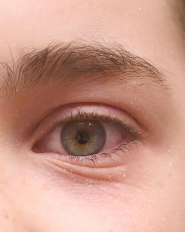 "<span class=""ezstring-field"">av_eczema-psoriasis_yeux_1x1_367_460</span>"