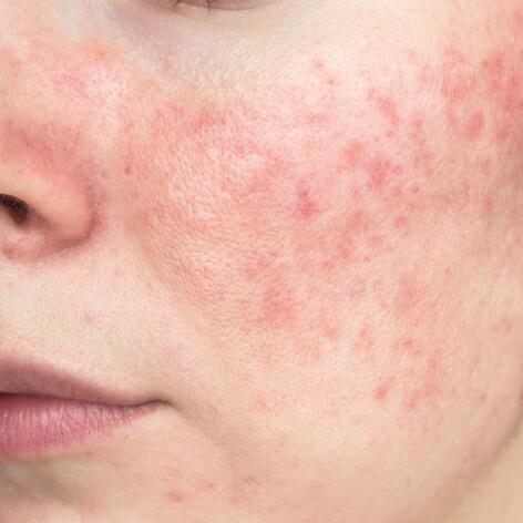 av_peaux-sensibles_acne_papulo-pustuleuse_rosacee