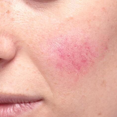 av_peaux-sensibles_acne_rosacee_1x1