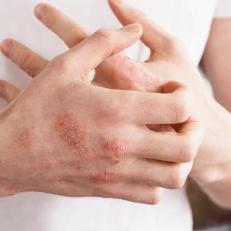 av_eczema-psoriasis_mains_plaques-rouges_1x1