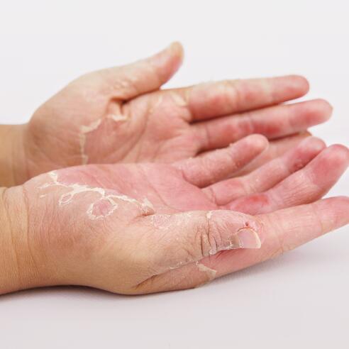 av_eczema-psoriasis_mains_bras_1x1