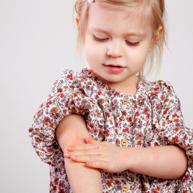 av_eczema-psoriasis_enfant_demangeaisons_bras_1x1