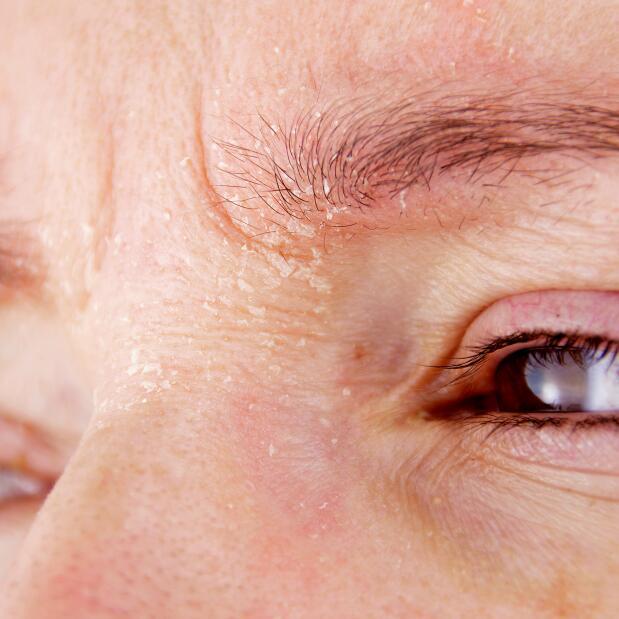 av_eczema-psoriasis_front_sourcils_1x1