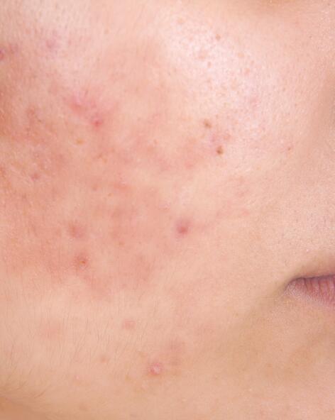 av_carnets-experts_acne_acne-inflammatoire_4x5