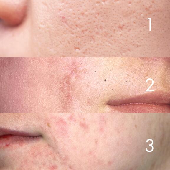 av_acne_cicatrices_3-types_1x1