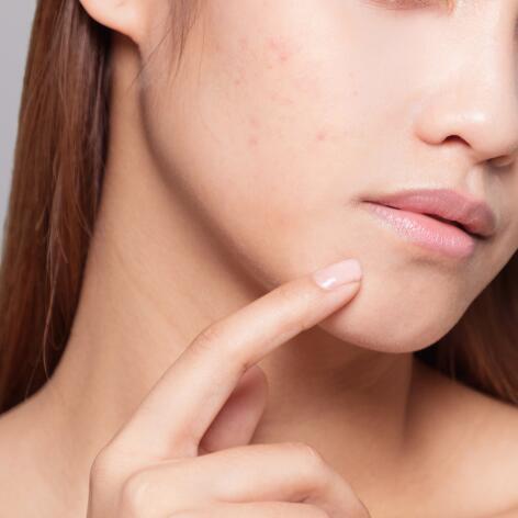 av_acne_adlescente_inspection_peau_1x1