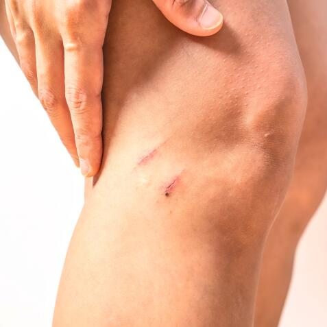 AD_SCARS_SCRATCH_KNEE_LARGE-1_2021