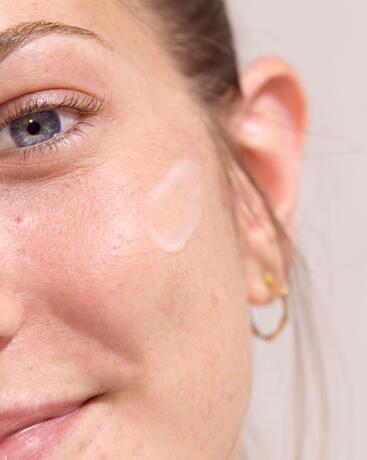 av_solaires_acne_cicatrices_4x5