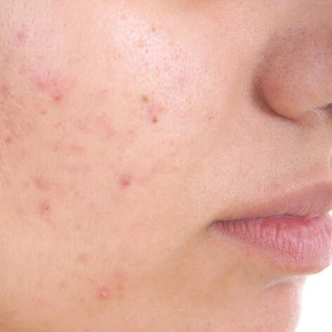 av_votre-peau_cicatrisation_acne_1x1