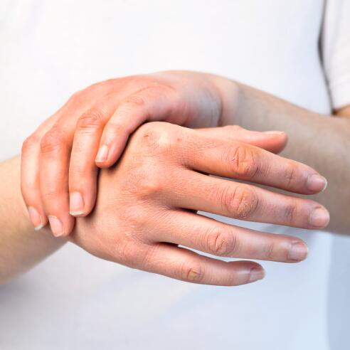 AD_IRRITATIONS_RED-HANDS_LARGE_2021