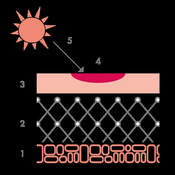 av_acne_schema_photosensibilisation_1x1
